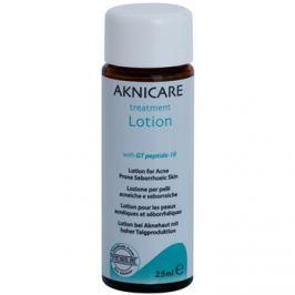 Synchroline Aknicare  helyi ápolás pattanások ellen a seborrheás dermatitiszes bőrre  25 ml